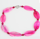 Horse Eye Shape Rose Pink Agate Choker Necklace Jewelry